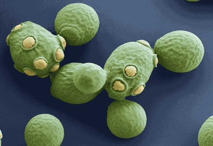 Lieviti: questi microrganismi sconosciuti!